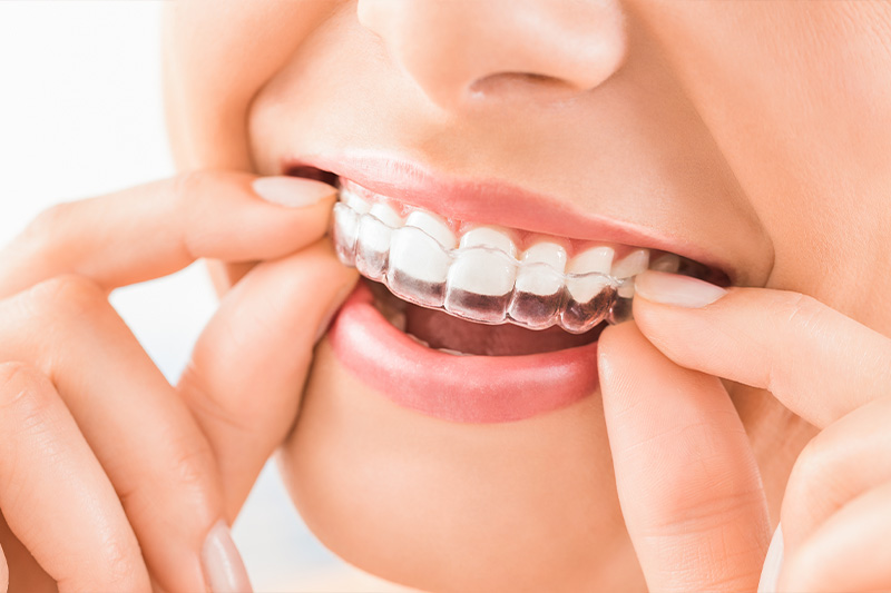 Clear Aligner Therapy in Norwalk