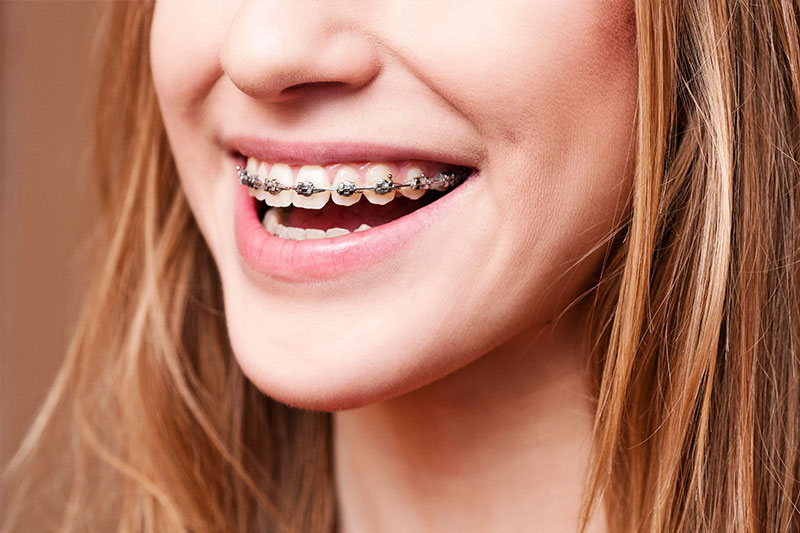 Orthodontics in Norwalk