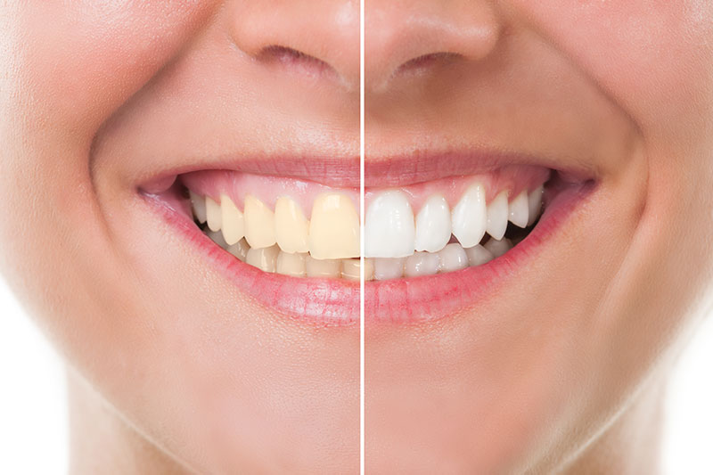 Teeth Whitening in Norwalk